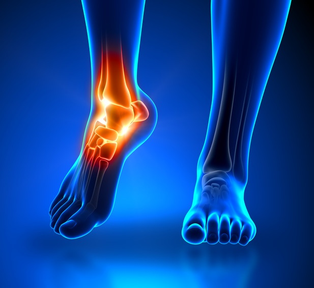 creative methods for treating ankle injuries