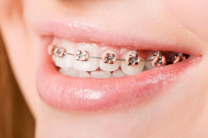 what to do when your child has braces and needs a mouthguard