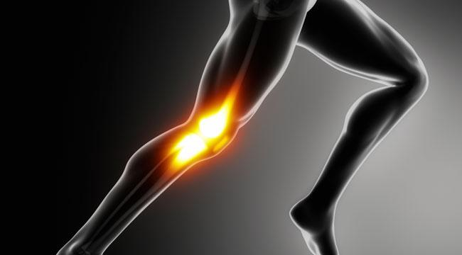 alleviating the common runners knee pain